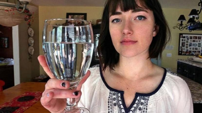 La pire des maladies : Alexandra Allen, 17 ans, allergique à l'EAU !