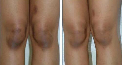 genoux gommés avant et après