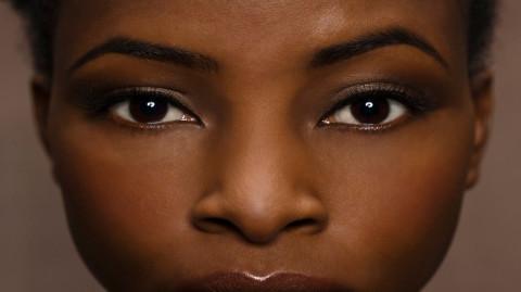 Comment faire disparaître les taches brunes sur votre visage avec des produits naturels  ?
