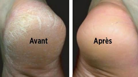 Traitez naturellement vos pieds secs et fendillés !